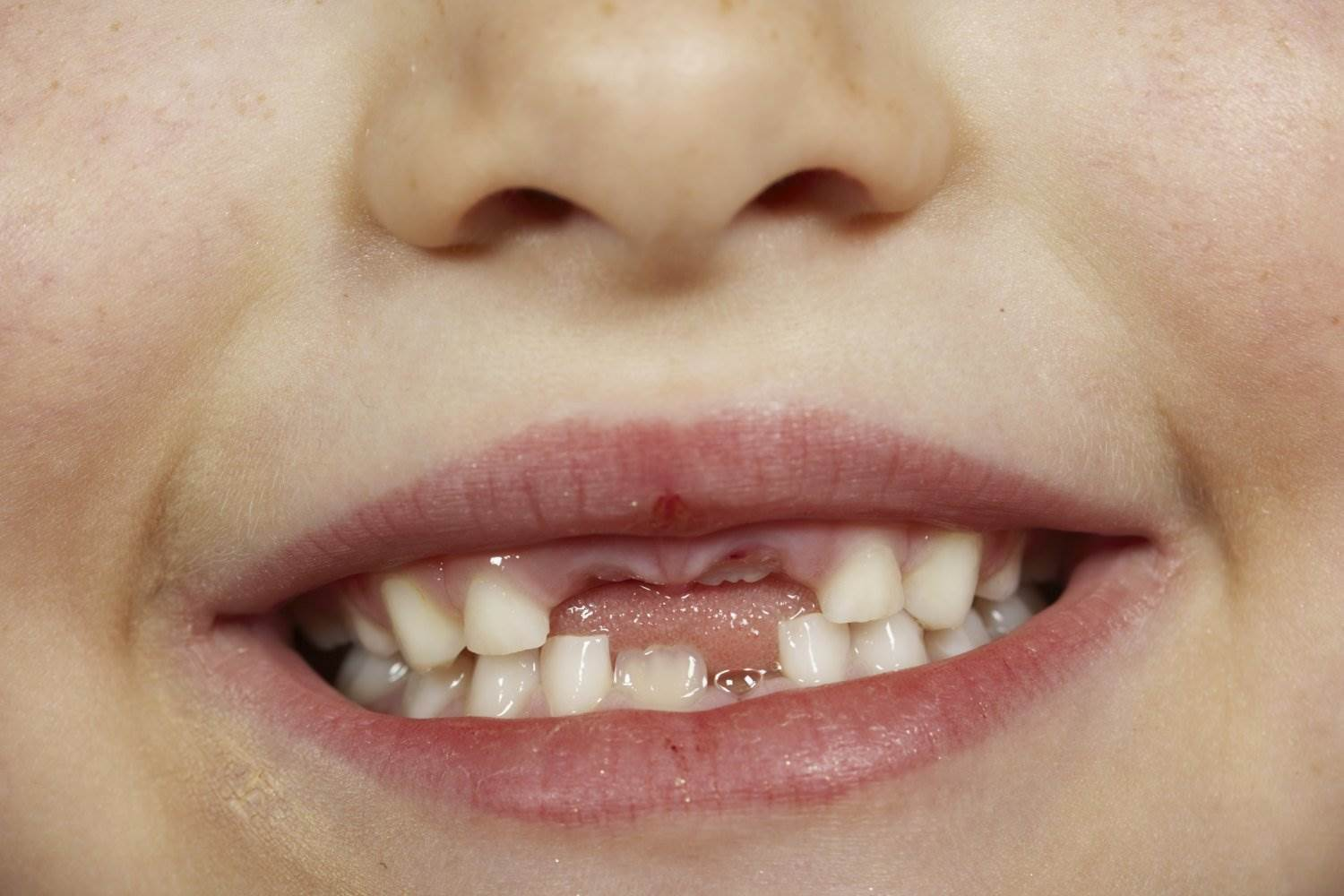 Dental care free of charge for all children from 1 January - mynd